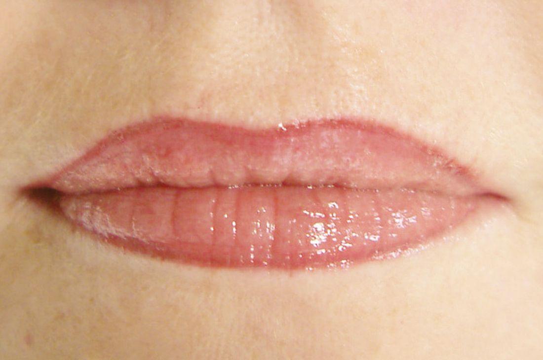 begleiterscheinungen permanent make up augenbrauen lidstrich lippen farben maschinen. Black Bedroom Furniture Sets. Home Design Ideas