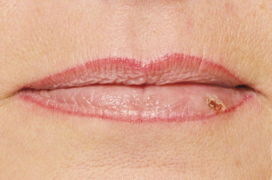 Lippe angeschwollen herpes dating