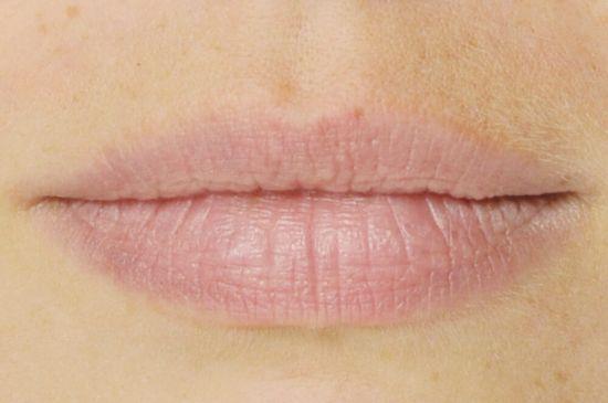 Lippe trockene stelle an der Mundschleimhaut ausgetrocknet?